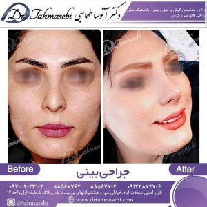 کوچک کردن بینی با جراحی