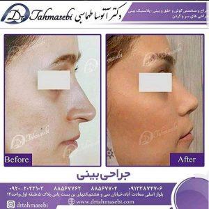بهترین جراح بینی تهران کیست