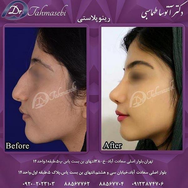 عمل جراحی بینی