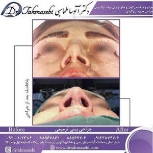 جراحی بینی ترمیمی