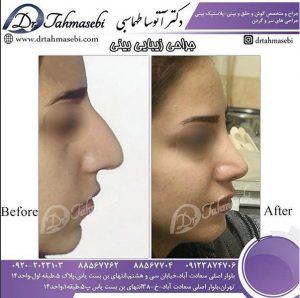 بهترین جراح بینی ایران