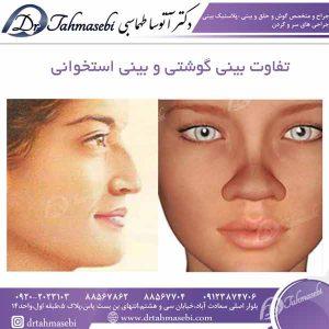 تفاوت بینی گوشتی و بینی استخوانی