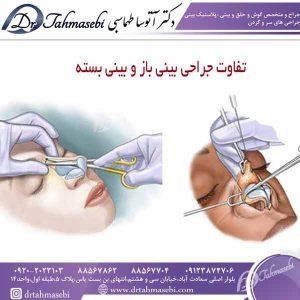 تفاوت جراحی بینی باز و بینی بسته